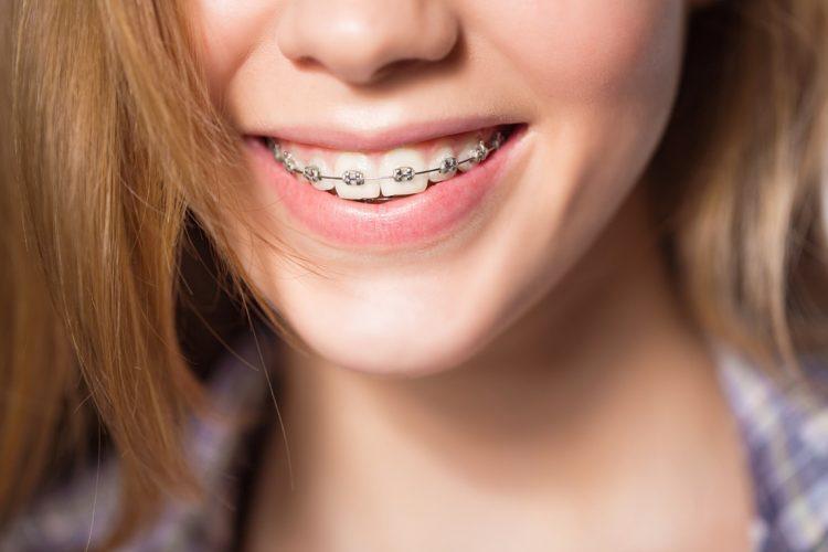 Niềng răng – Chỉnh nha