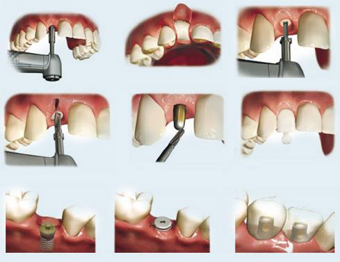 Quy trình cấy ghép implant chuẩn đem lại hiệu quả điều trị tốt